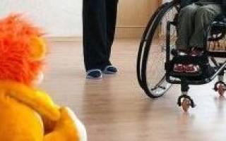 Имеет ли право инвалид с детства на недоплаченный отпуск?