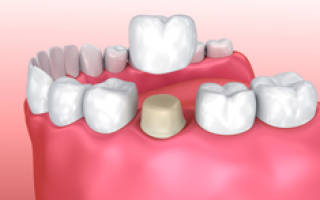 Что делать и как задокументировать недостатки коронки на зуб?